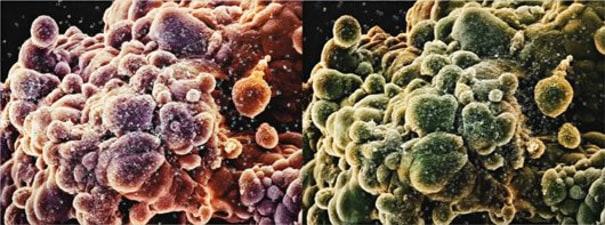 Second Series Biopsy: M865/303, M865/304